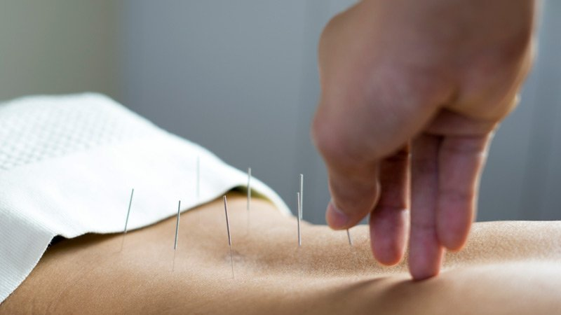 is_191224_acupuncture_needles_800x450